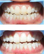 Whitening Xpressions